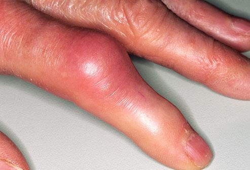 búza kezelés artrózis esetén ízületek osteoarthrosis melyik ez a kezelés