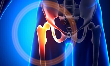 csípőízületek fáj - videó