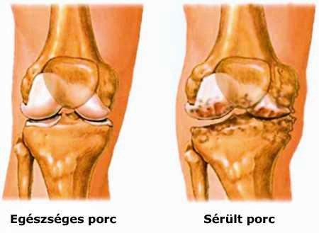 a térd összes betegségének neve csontritkulás fájdalom a csípőízületben