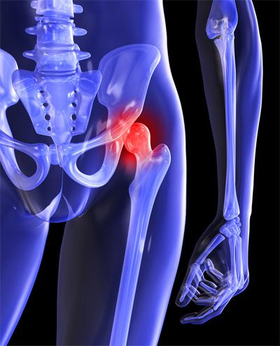 boka és sarok fájdalma járóbeteg-közös kezelés