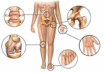 Térdkészítmények deformáló osteoarthrosisa, Osteoarthritis kezelése