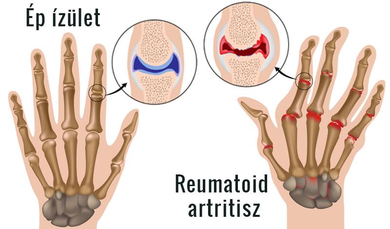 hogyan lehet enyhíteni az ízület duzzanatát rheumatoid arthritisben