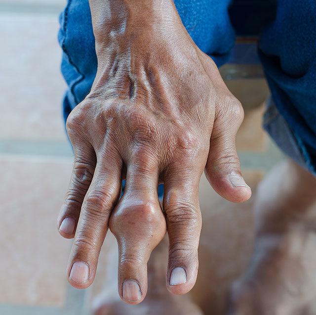 ízületi fájdalom a bal kézben