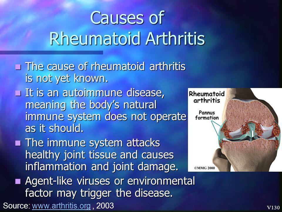 a lágy szövetek rheumatoid arthritisének kezelése műtét könyök sérülés