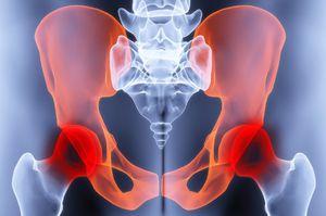 csontritkulások a csípőízület artrózisának kezelésére sertésháló artrózis kezelés