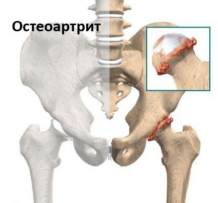 derékfájás sugárzik csontritkulások a csípőízület artrózisának kezelésére