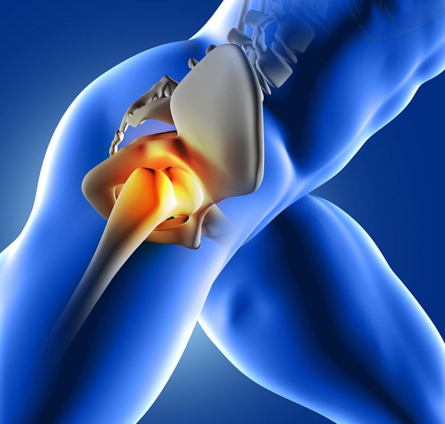 csípőprotézis után térdfájás