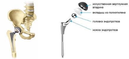csípőízület coxarthrosis 3 fokos kórtörténetében