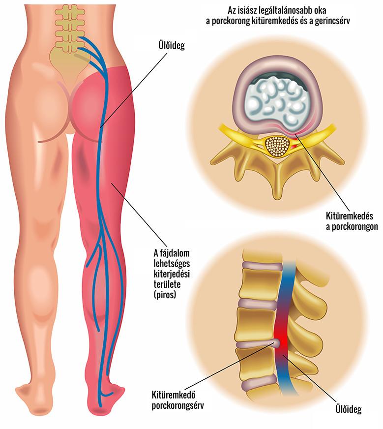 lábfájdalom a csípőízület kezelésében