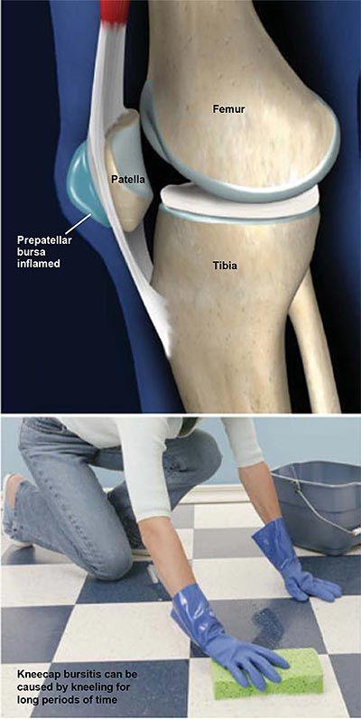 ibuprofen a térdízület fájdalmáról