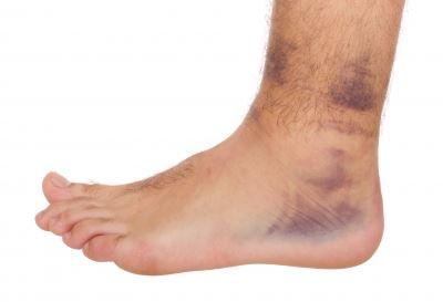boka láb sérülése