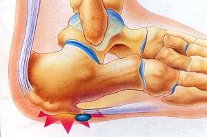 inni ízületi fájdalom elasztikus kötszer a bokaízület artrózisához