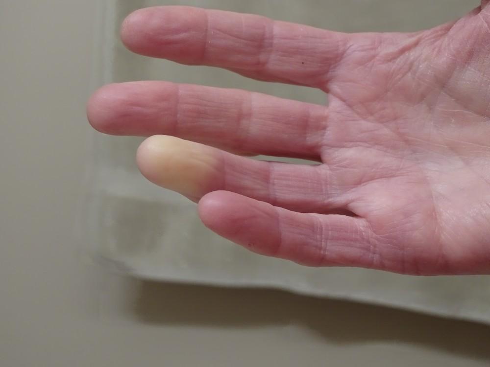diffúz kötőszöveti betegségek etiológiája borogatás ízületi gyulladásra