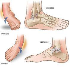 Agilium Freestep ortézis térdízületi osteoarthritis esetén | Ottobock HU