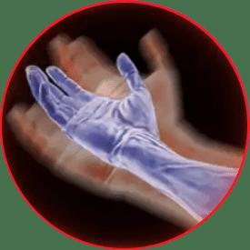 milgamma ízületi fájdalom