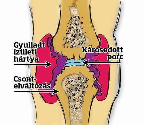 ízületi javítás ízületi gyulladással