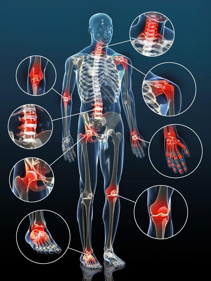 ízületi kezelés artrosis ayurveda ízületi fájdalom étel
