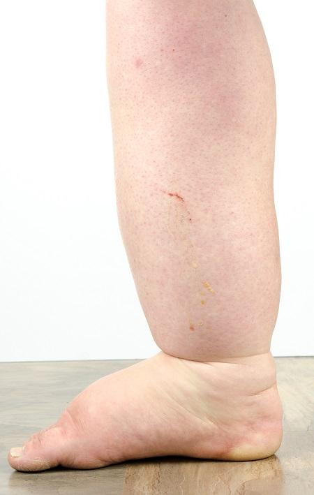 duzzadt és nehéz lábak kezelése térdfájdalom időjárással