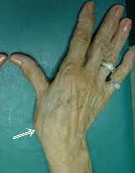 a hüvelykujj artrózisának sebészi kezelése