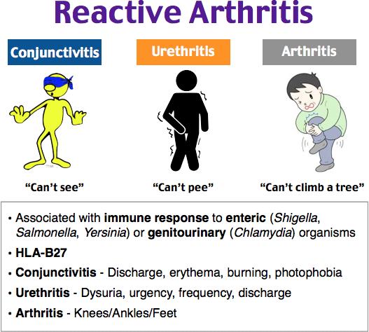 ízületi kenőcs sérülés után a sacroiliac ízületek deformáló artrózisa