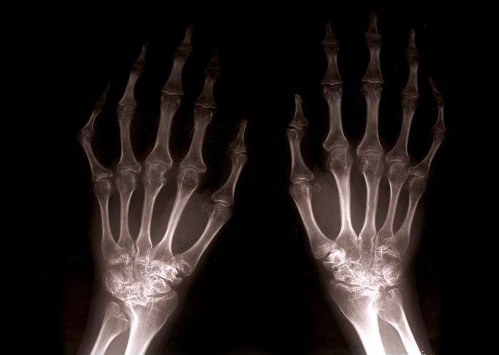 fájdalom mindkét térdben a csípőízület fájdalmának gyógyszeres kezelése