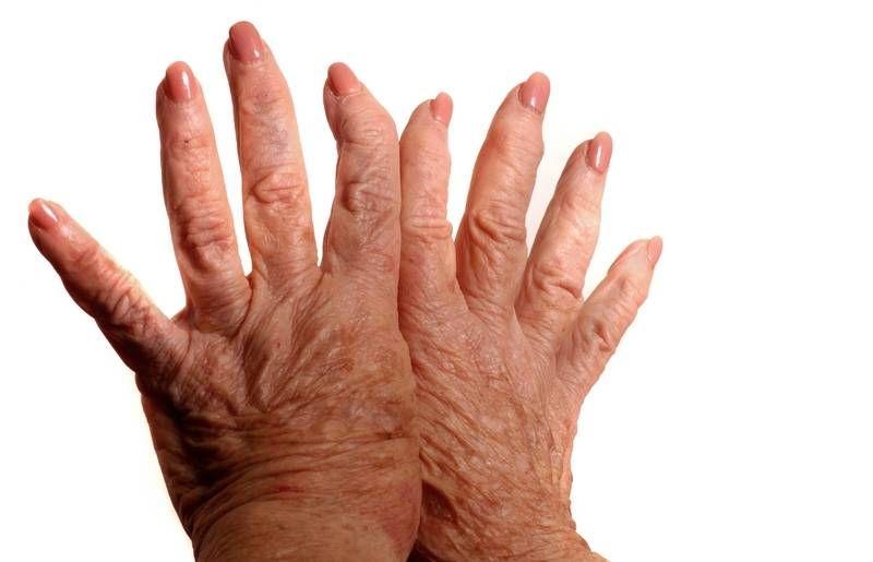fájó második lábujj artritisz