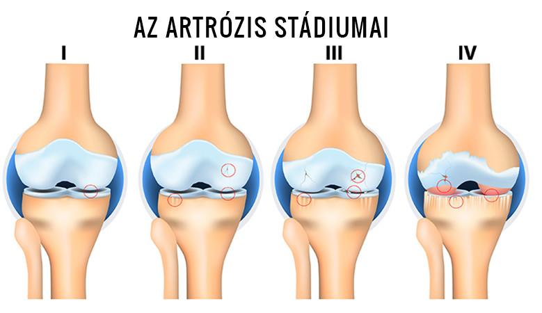 a térd elmozdult artrózisa