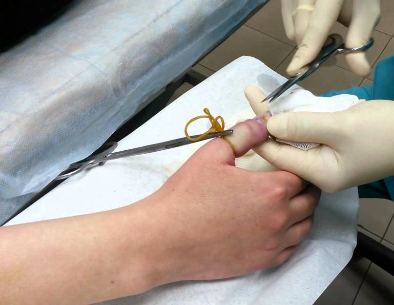 ízületi gyulladás a kézkezelésben láb ízületi betegsége