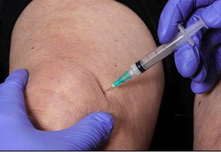 térdkopás kezelése nem szteroid gyulladáscsökkentő tabletták