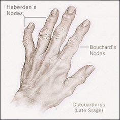 scaphoid ízületi fájdalom csípőízület idege fáj
