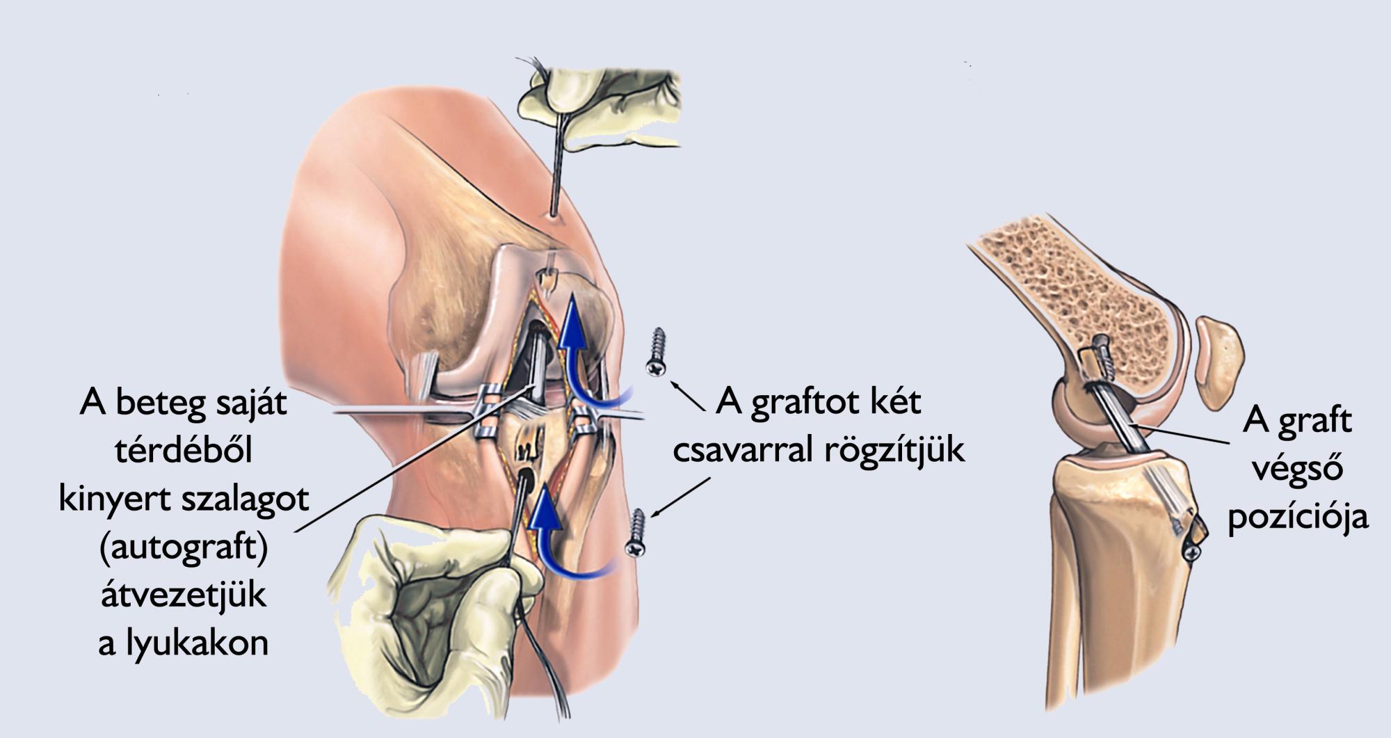 ízületi műtét