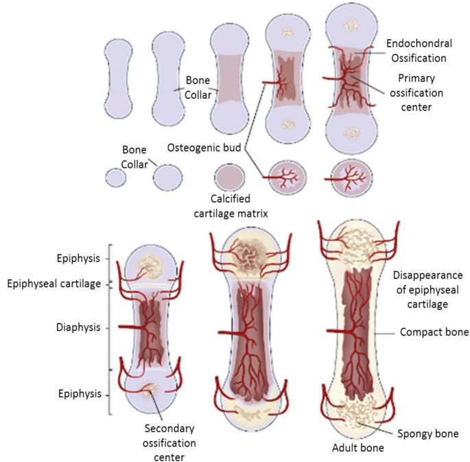 Osteochondritis dissecans a térdízület