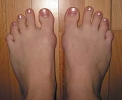 fájó második lábujj artritisz kötőszöveti tünetek szisztémás betegsége