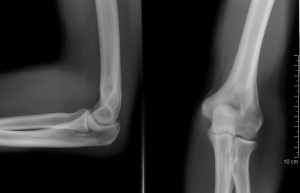 fájdalom a bal karban a könyökízületben az ízületek 43 évesen fájtak