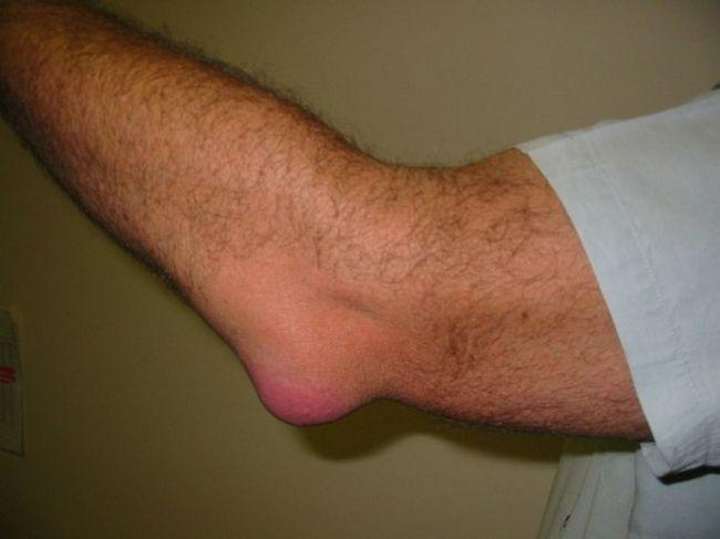 fájdalom a bal karban a könyökízületben fájdalom a boka sérülés után