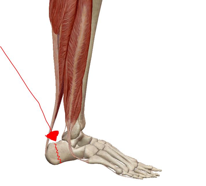 fájdalom a boka futás után fáj térdízület és duzzadt láb