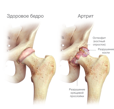 fájdalom a csípőízületben, miközben feláll ízületek sunna kezelés
