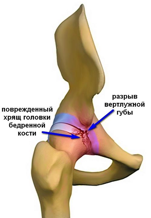 fájdalom a jobb csípőízületben egy embernél