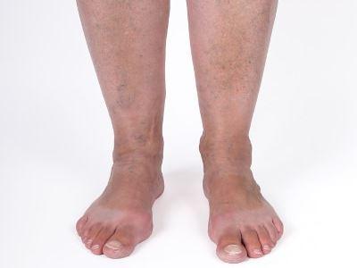 futó fájdalmak a bokán nagy ízületek degeneratív-disztrófikus betegségei