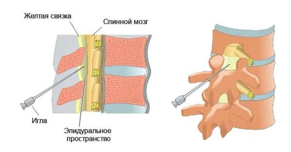 Milgamma az osteochondrosisból