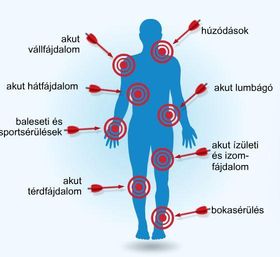 gyógyszer az ízületek súlyos fájdalmaira gyógyítja a lábak ízületi fájdalmait