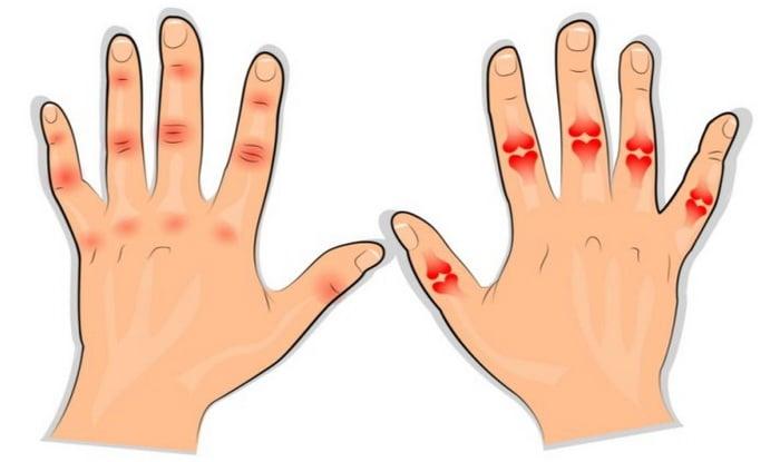 gyógyszer ujjízületek kezelésére ha a fájdalom a csípőben