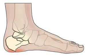 az artrózis megfelelő kezelése aggódik a térdfájdalom miatt