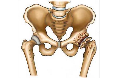 hogyan lehet feltölteni a lábakat térdízület artrózisával