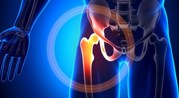 hogyan lehet kezelni a csípőízület ráncolását megfizethető artróziskezelés