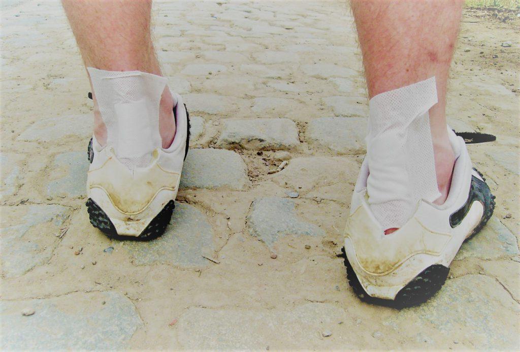 hogyan lehet kezelni a lábán lévő gyulladt ízületet