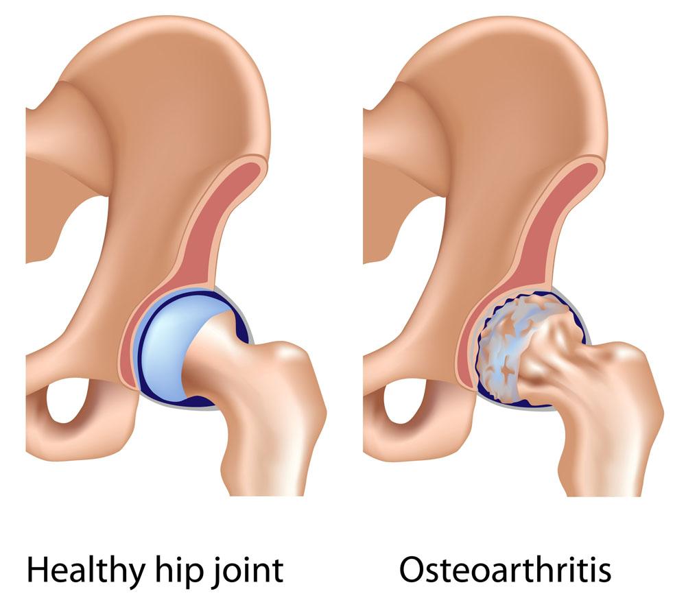 hogyan és hogyan kell kezelni a csípőízület osteoarthritist