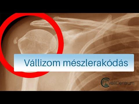 ízületi fájdalom varázslat köszvény artrózis kezelése
