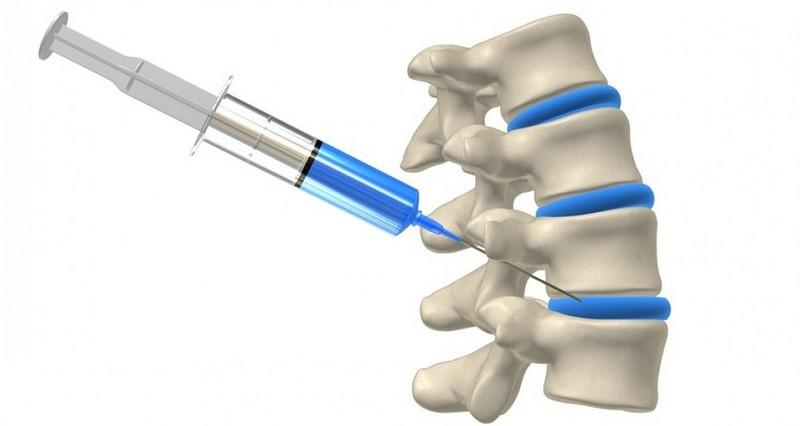 kenőcsök nyaki osteochondrozishoz vérkeringéshez könyökízületi tünetek kezelése szinovitisz