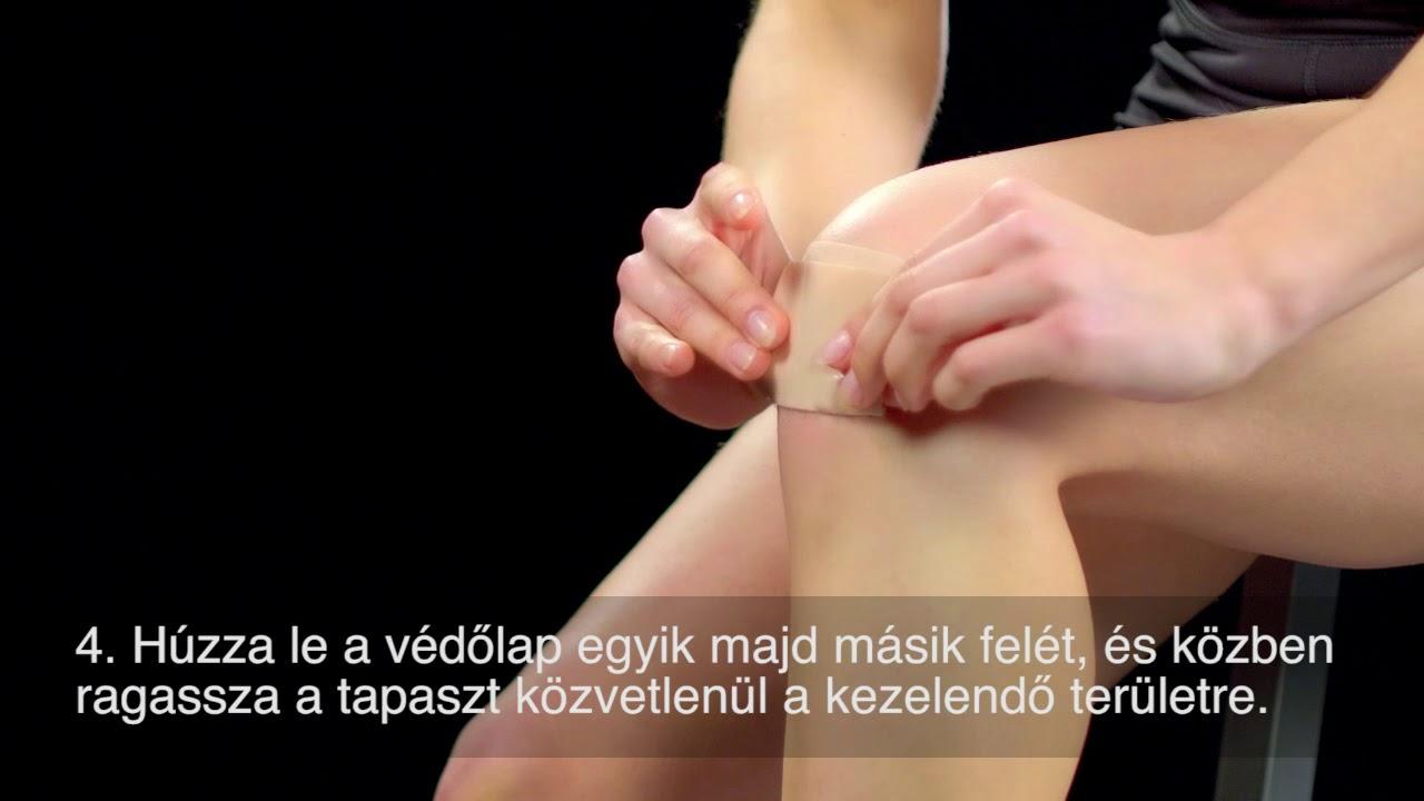 könyök-sprain kezelések